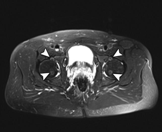 Medical Apparatus Imaging Protocols: MRI